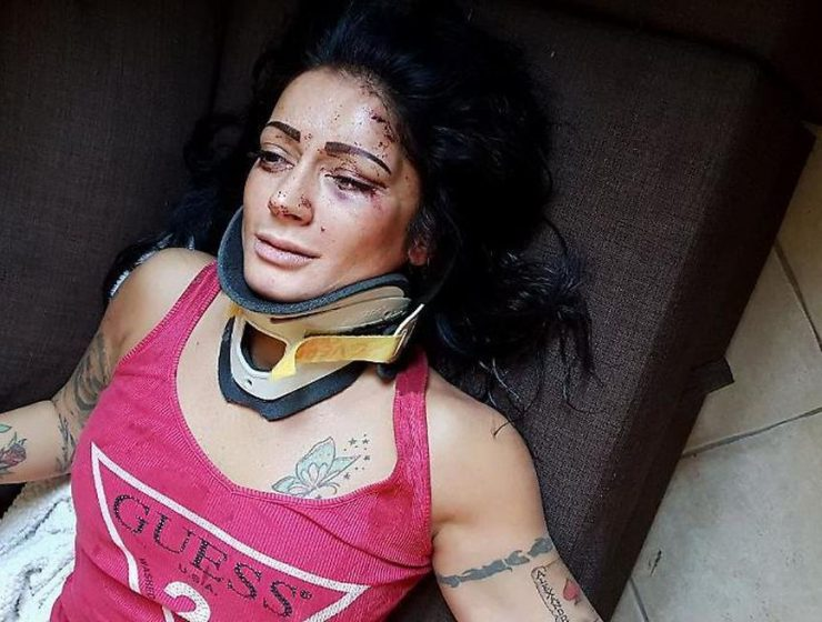 Cremona, 33enne aggredita in casa sua denuncia pestaggio con foto - MasterX